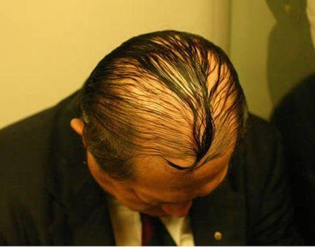Мужчины, скрывающие свою лысину (15 фото)