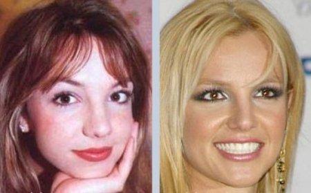Знаменитые люди, изменившие свои носы (36 фото)